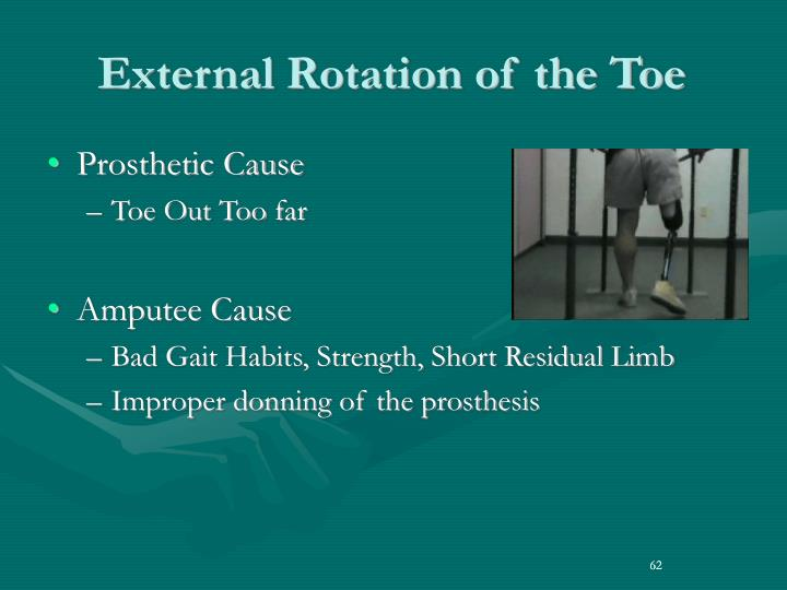 External Rotation of the Toe