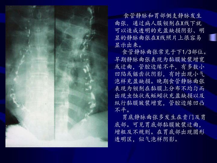 食管静脉和胃部侧支静脉发生曲张.通过病人服钡剂在