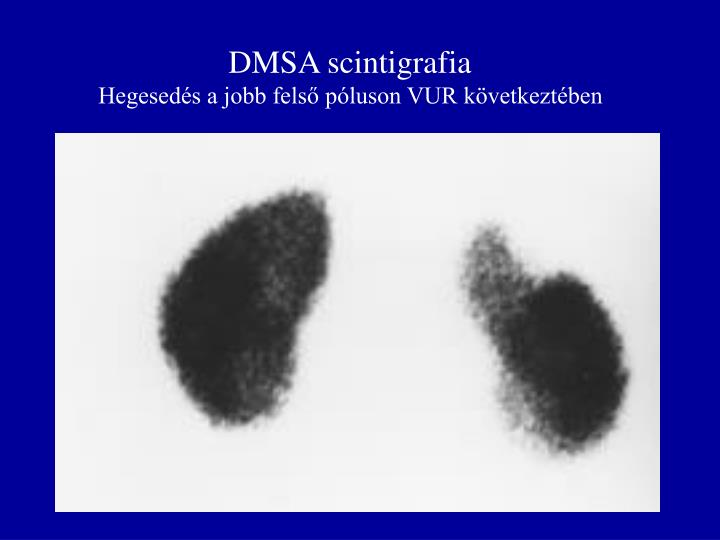 DMSA scintigrafia