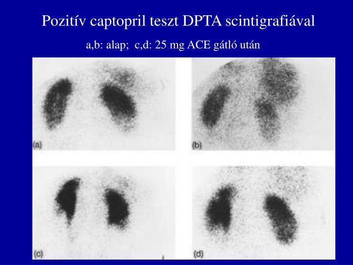 Pozitív captopril teszt DPTA scintigrafiával