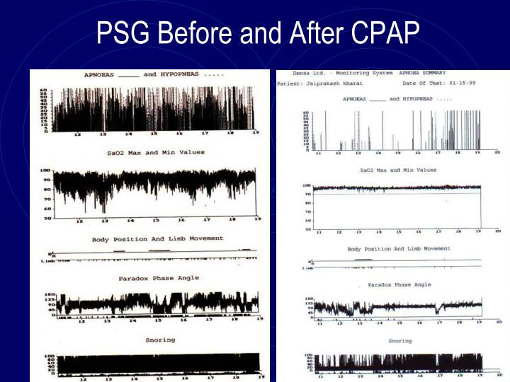 PSG Before and After CPAP