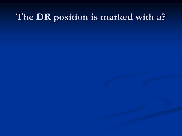 The DR position is marked with a?