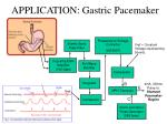 application gastric pacemaker