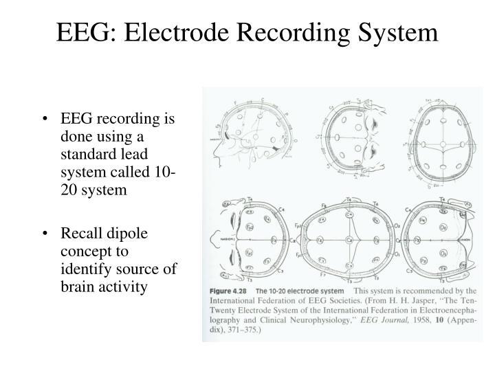 EEG: Electrode Recording System