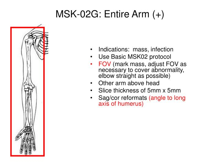 MSK-02G: Entire Arm (+)