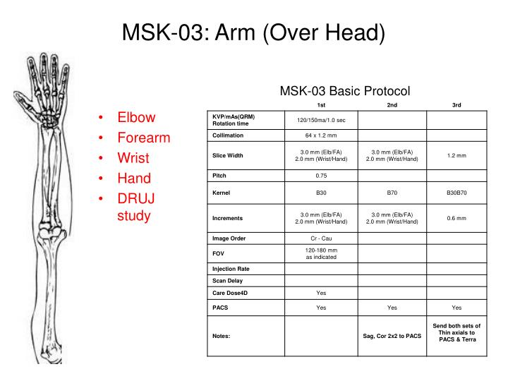 MSK-03: Arm (Over Head)