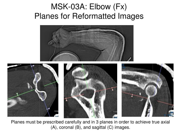 MSK-03A: Elbow (Fx)