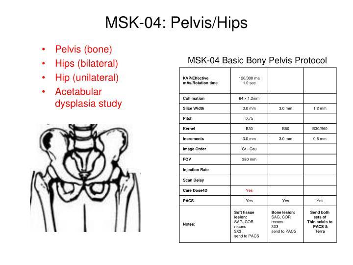 MSK-04: Pelvis/Hips