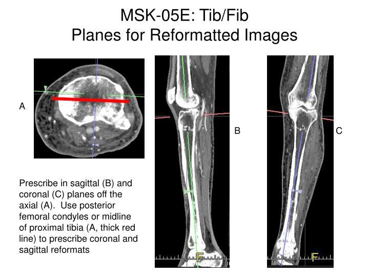 MSK-05E: Tib/Fib