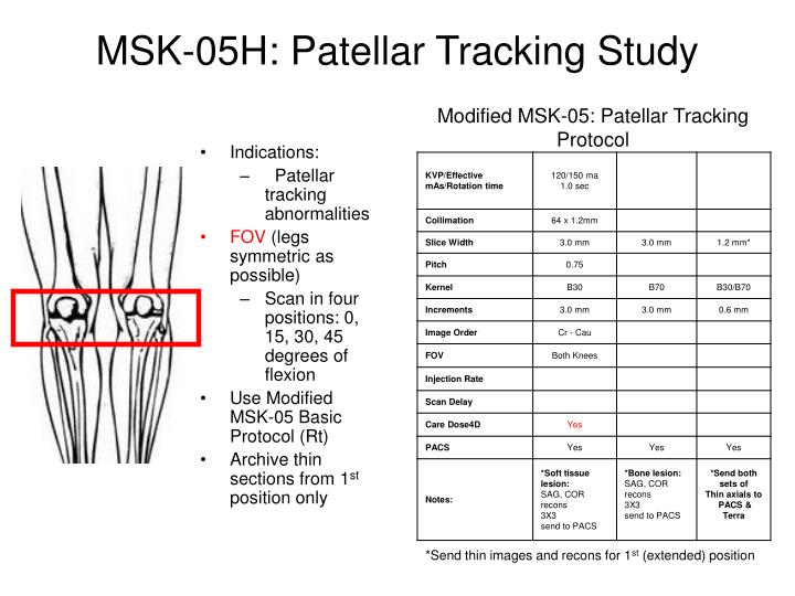 MSK-05H: Patellar Tracking Study