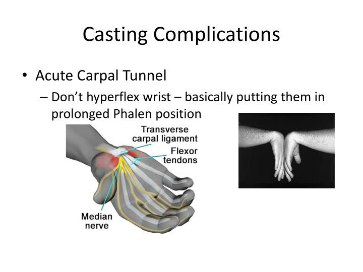 Casting Complications