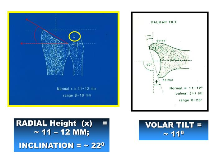 Ppt Distal Radius Fractures Powerpoint Presentation Id