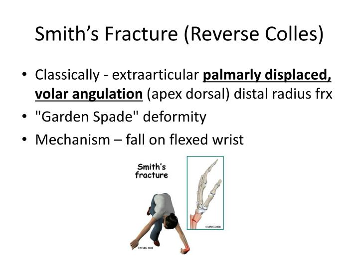 Smith's Fracture (Reverse Colles)