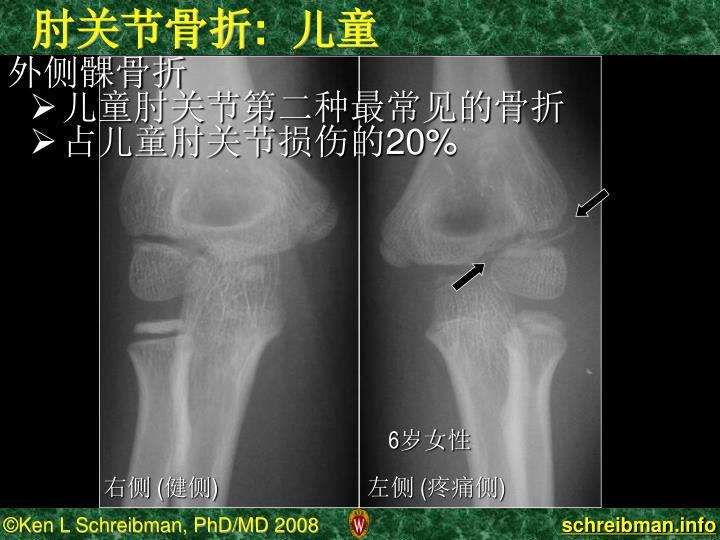 肘关节骨折:  儿童