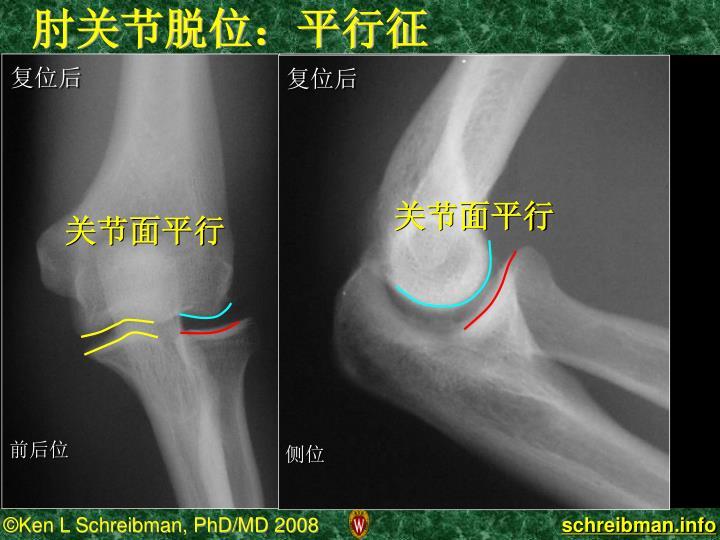 肘关节脱位:平行征