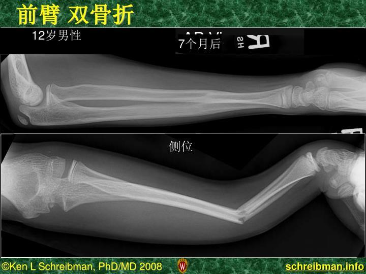 前臂 双骨折