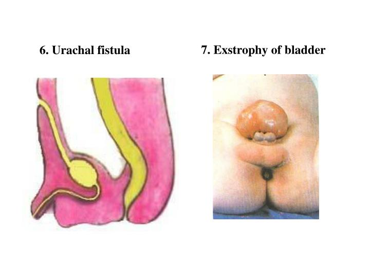 7. Exstrophy of bladder