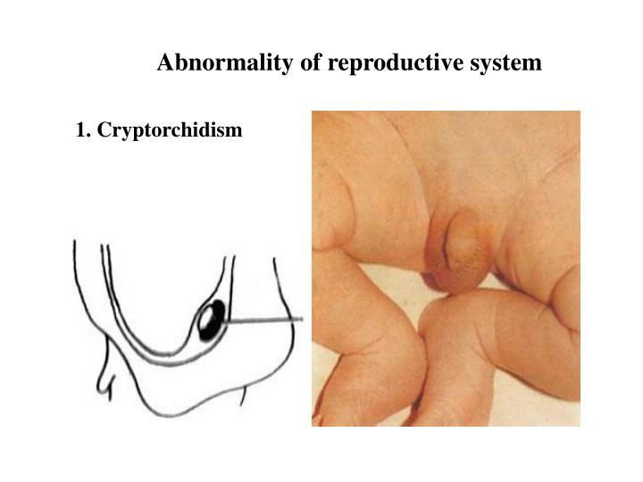 Abnormality of reproductive system