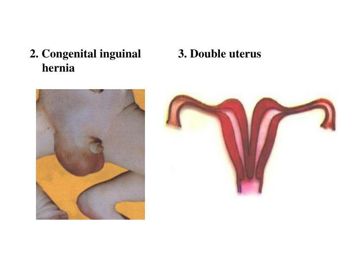 2. Congenital inguinal