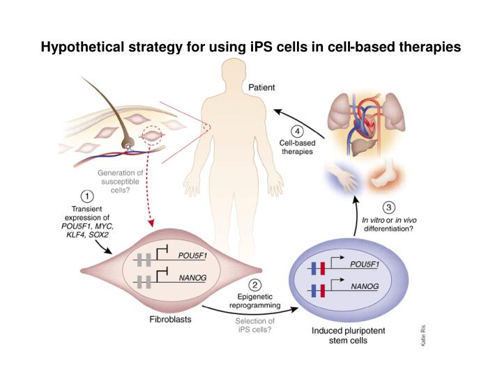 Hypothetical strategy for using iPS cells in cell-based therapies