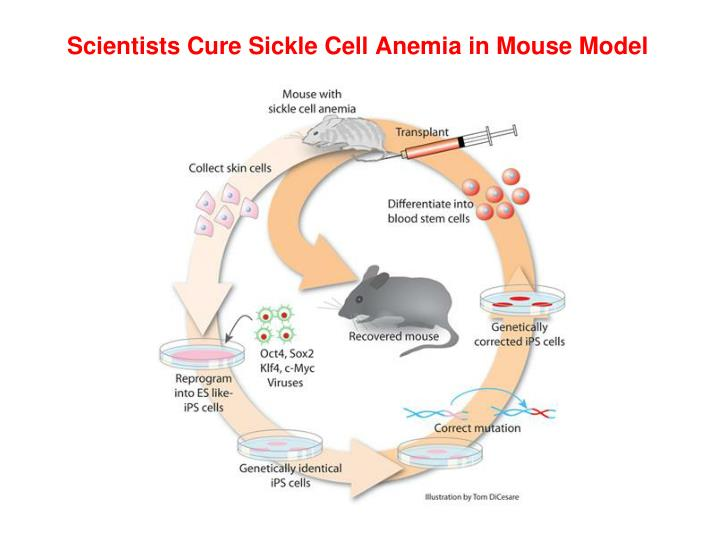 Scientists Cure Sickle Cell Anemia in Mouse Model
