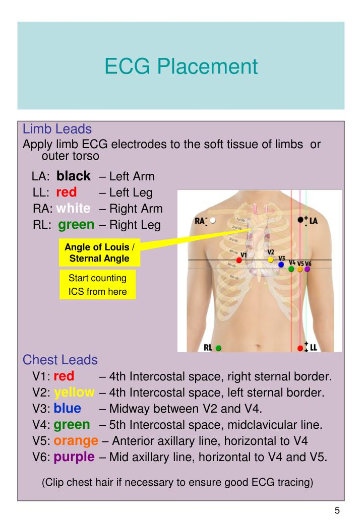 ECG Placement