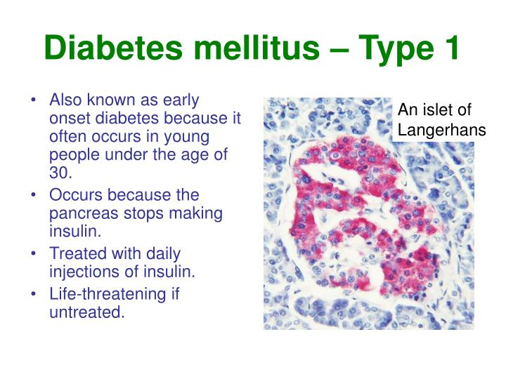 Diabetes mellitus – Type 1