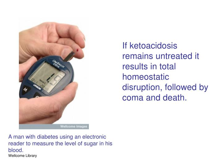 If ketoacidosis remains untreated it results in total homeostatic disruption, followed by coma and death.