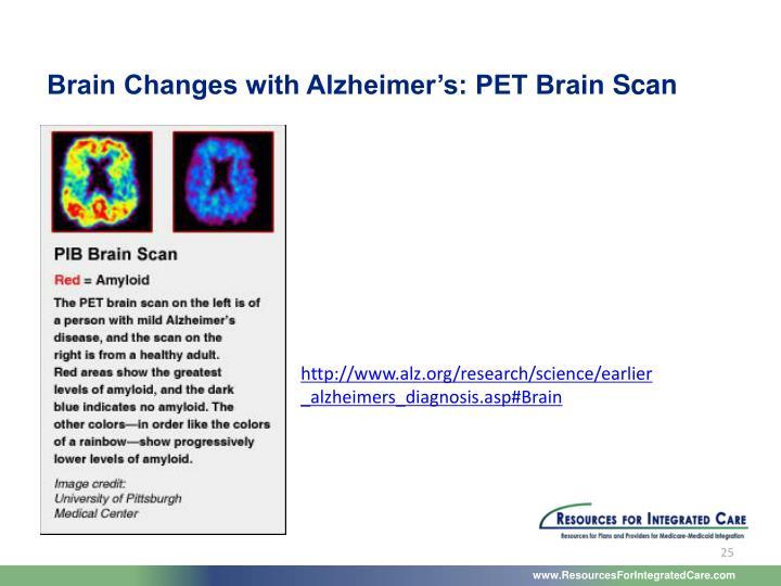 Brain Changes with Alzheimer's: PET Brain