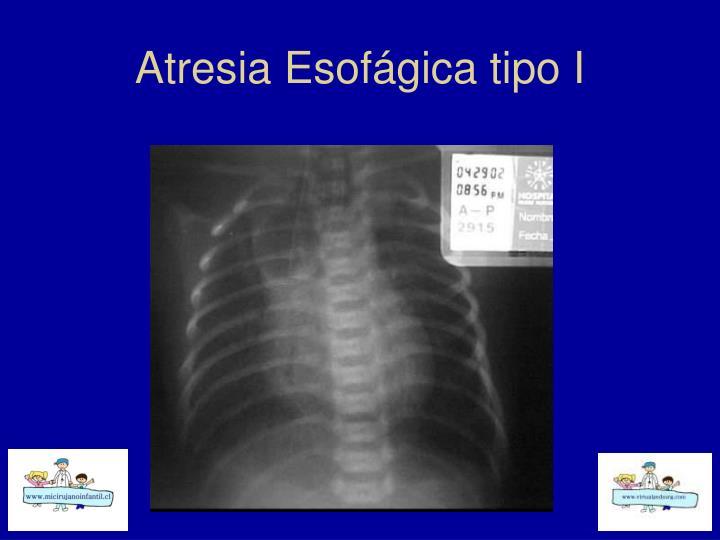 Atresia Esofágica tipo I