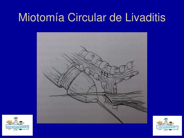 Miotomía Circular de Livaditis