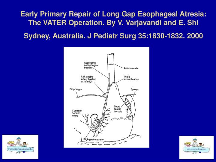 Early Primary Repair of Long Gap Esophageal Atresia: