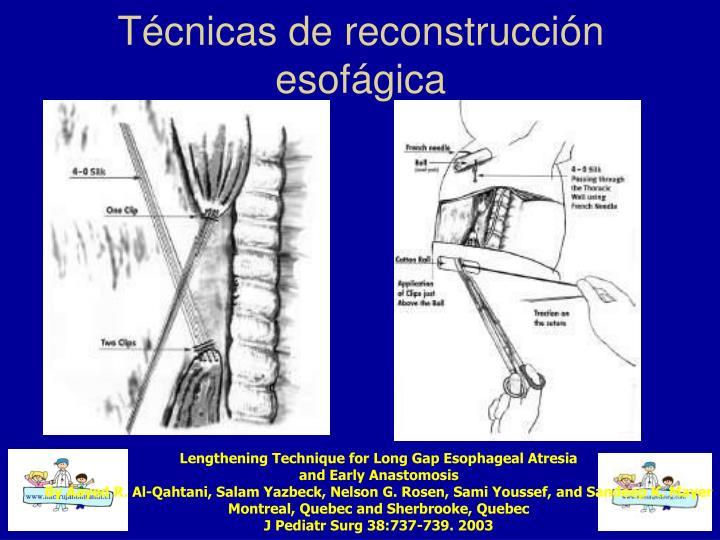 Técnicas de reconstrucción esofágica