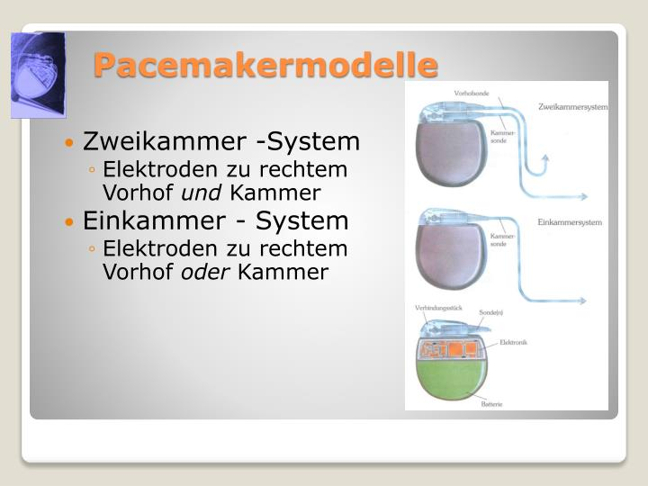 Pacemakermodelle