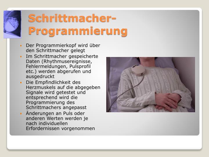 Schrittmacher-Programmierung