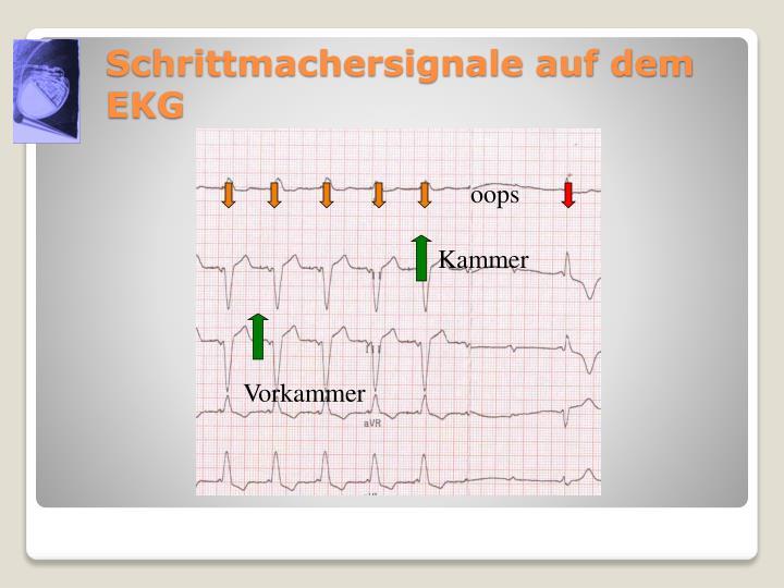 Schrittmachersignale auf dem EKG