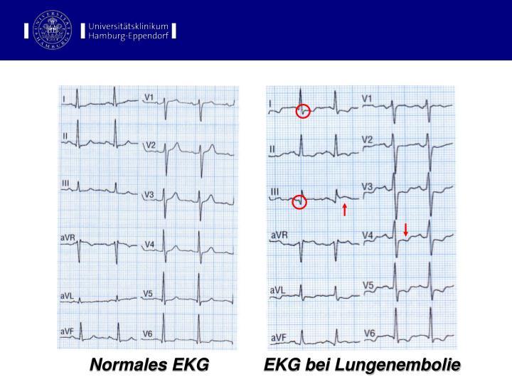 EKG-Befunde