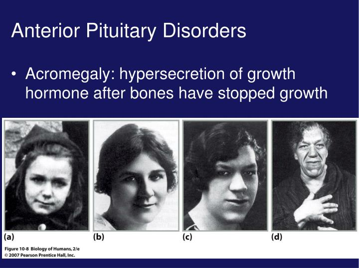 Anterior Pituitary Disorders