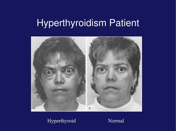 Hyperthyroidism Patient