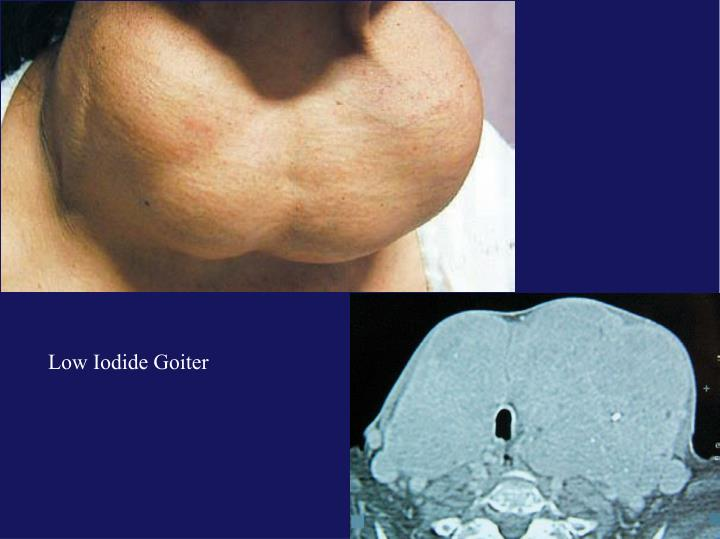 Low Iodide Goiter