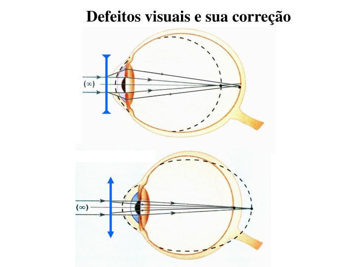 Defeitos visuais e sua correção