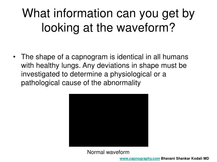 What information can you get by looking at the waveform?