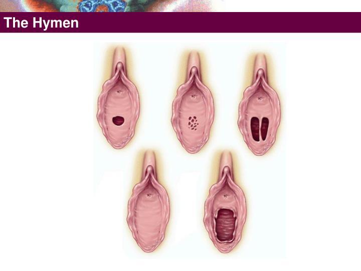 The Hymen