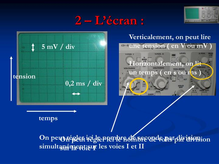 2 – L'écran :