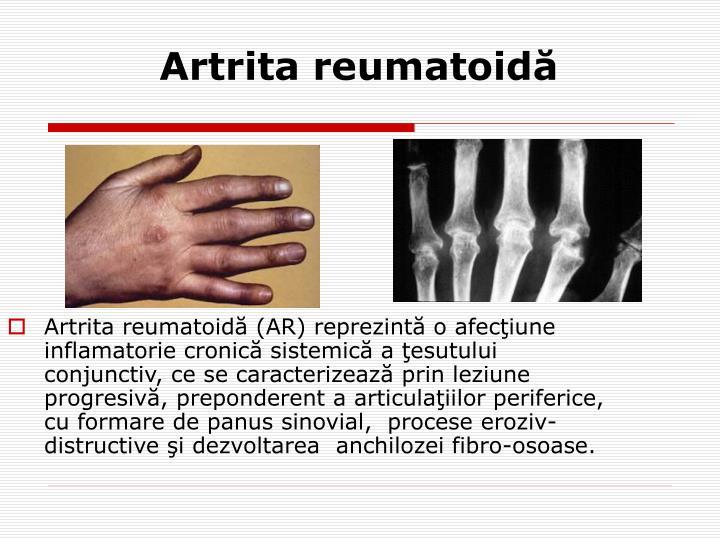 Artrita reumatoidă (AR) reprezintă o afecţiune inflamatorie cronică sistemică a ţesutului conjunctiv, ce se caracterizează prin leziune progresivă, preponderent a articulaţiilor periferice, cu formare de panus sinovial,  procese eroziv-distructive şi dezvoltarea  anchilozei fibro-osoase.
