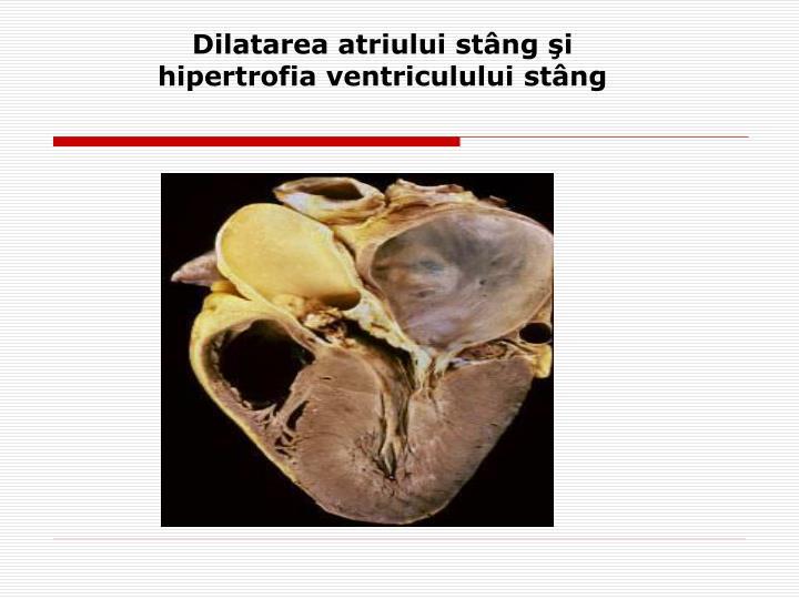 Dilatarea atriului stâng şi hipertrofia ventriculului stâng