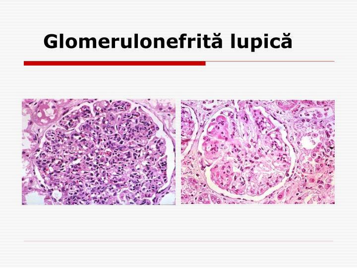 Glomerulonefr