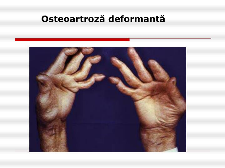 Osteoartroză deformantă