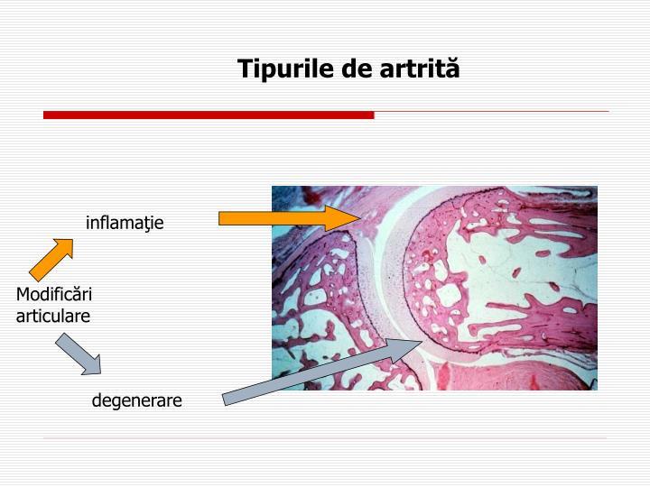 Tipurile de artrită