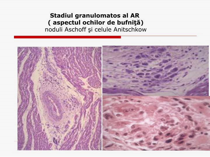 Stadiul granulomatos al AR